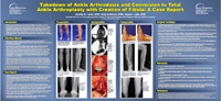 Takedown of Ankle Arthrodesis and Conversion to Total Ankle Arthroplasty with Creation of Fibula: A Case Report