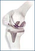 Repaired knee joint